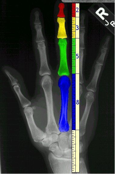 Golden ratio in human fingers